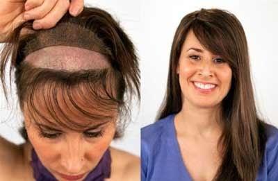 جایگزین کردن مو